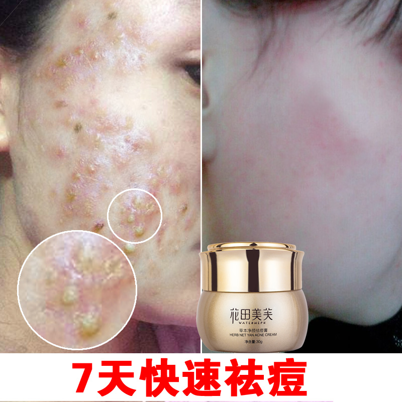 herb net yan acne cream
